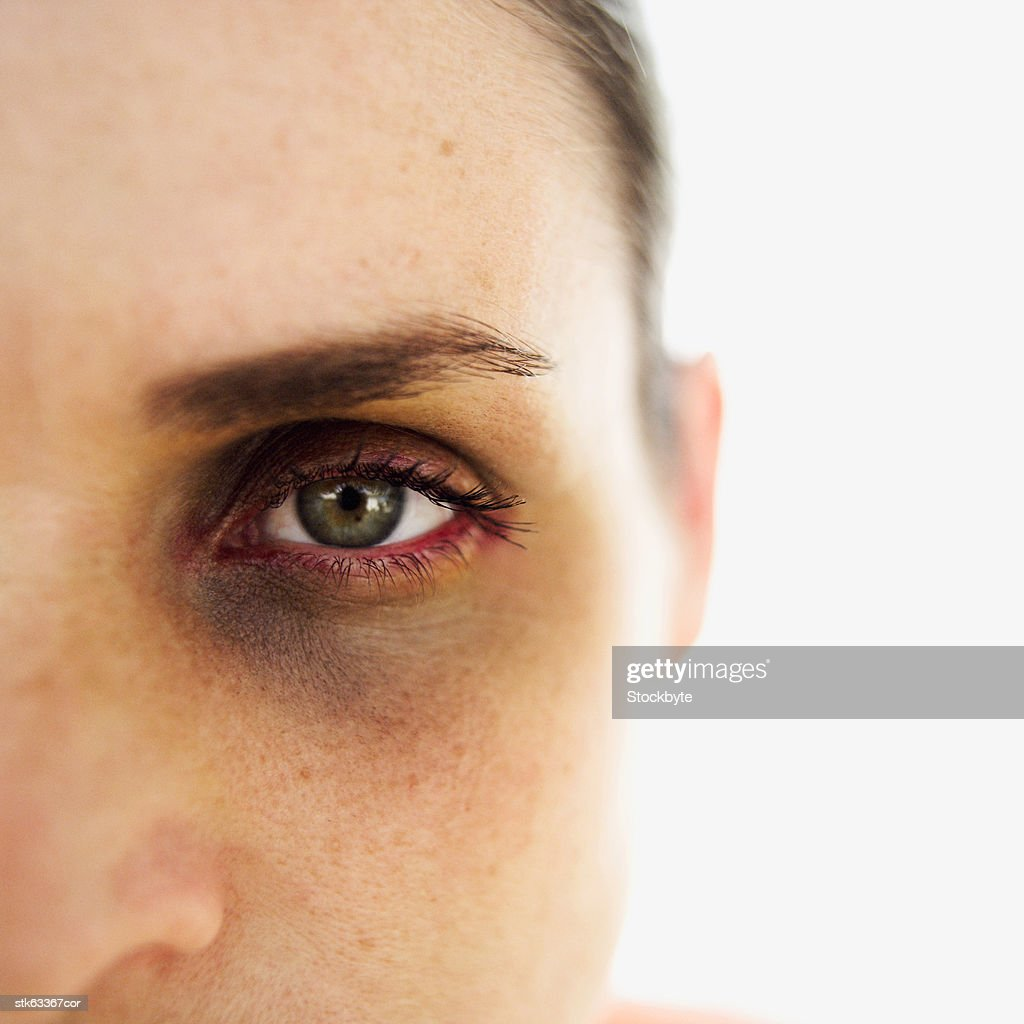 close-up of a woman with a black eye : Stock Photo