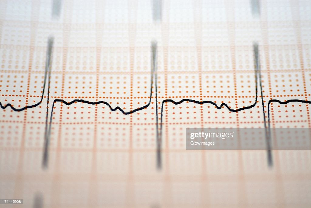 Close-up of an ECG report : Stock Photo
