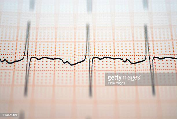 Close-up of an ECG report