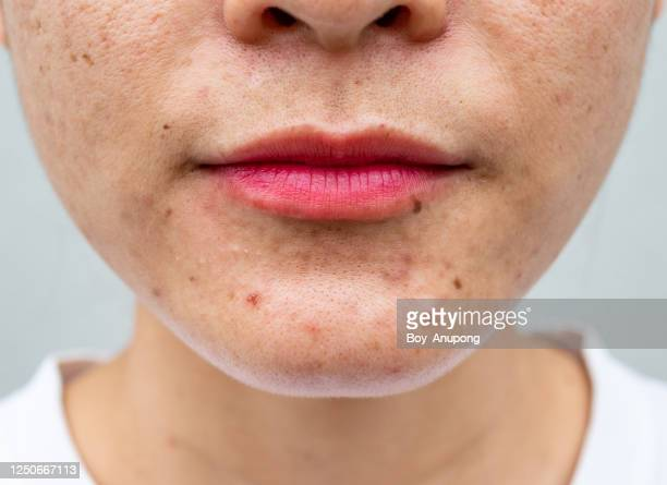 close-up of asian woman half-face has variety problems on her skin (such as acne, pimple, pores and melasma etc). - infectious disease stock pictures, royalty-free photos & images