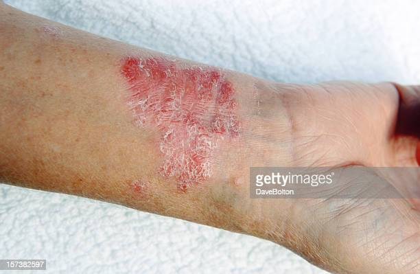 A close-up of bad psoriasis on a person's arm
