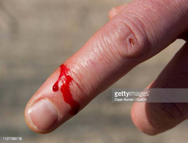 4 796 Cut On Finger Photos And Premium High Res Pictures Getty Images