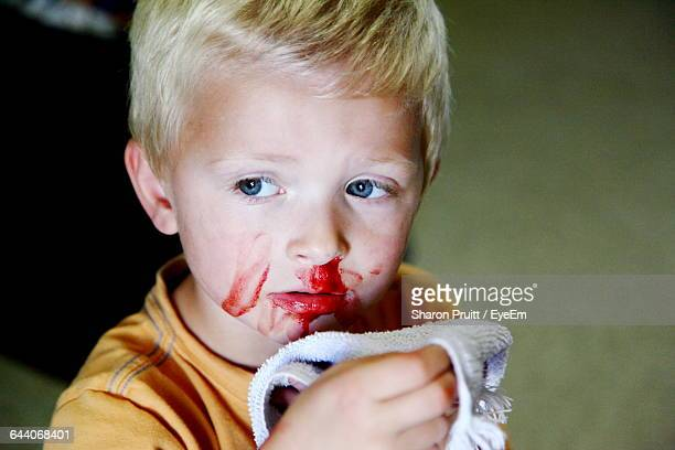 close-up of boy with bleeding nose - sangre por la nariz fotografías e imágenes de stock