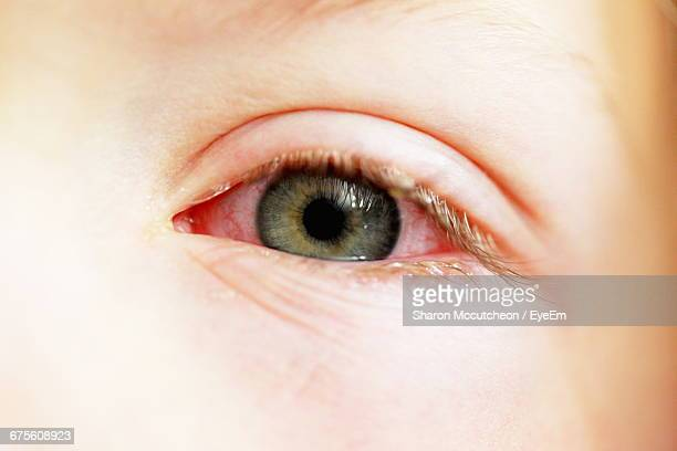 Close-Up Of Boy With Conjunctivitis