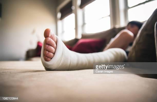 close-up of boy with fractured leg sitting on sofa at home - gipsbein stock-fotos und bilder