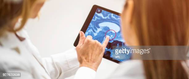Close-up of brain anatomy on digital tablet