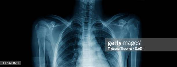 close-up of chest x-ray image - x ray image stock pictures, royalty-free photos & images