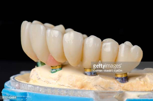 Close-Up Of Dentures Against Black Background