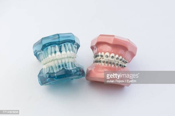 close-up of dentures over white background - human gums stock photos and pictures