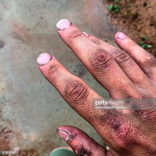 close-up of dirty and injured hand - hand injury stock photos and pictures