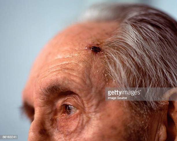close-up of elderly man's head - melanom stock-fotos und bilder