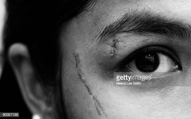 close-up of female face, cuts/stitches around eye - suture stock photos and pictures