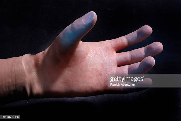 A closeup of French company RECFrance's Bionics TITANIUM hand made with Titanium Aluminium and Kevlar on January 5 2015 in Bedarieux France The...