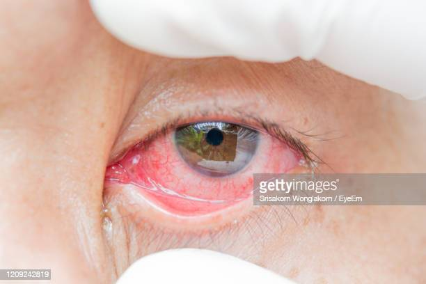close-up of human eye - conjunctivitis stock pictures, royalty-free photos & images