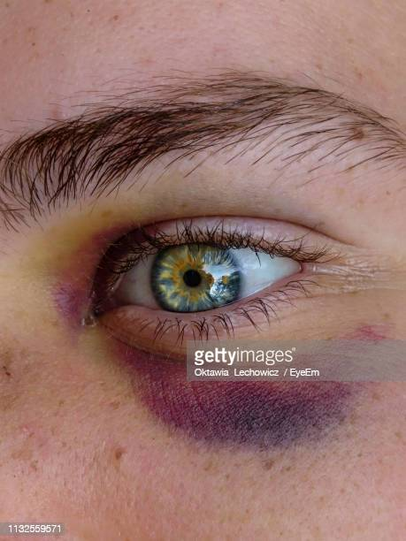 close-up of human eye with bruise - equimose imagens e fotografias de stock