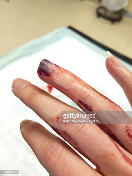 Close-Up Of Injured Hand Covered In Blood