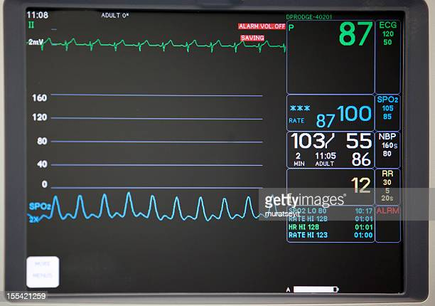 close-up of intensive care unit monitoring screen - intensive care unit stock pictures, royalty-free photos & images