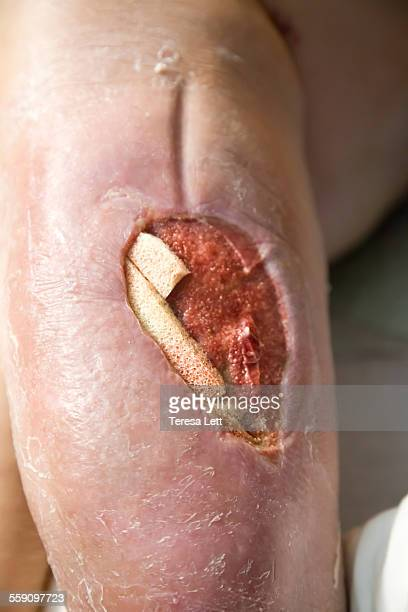 close-up of large open wound - leg wound stock pictures, royalty-free photos & images
