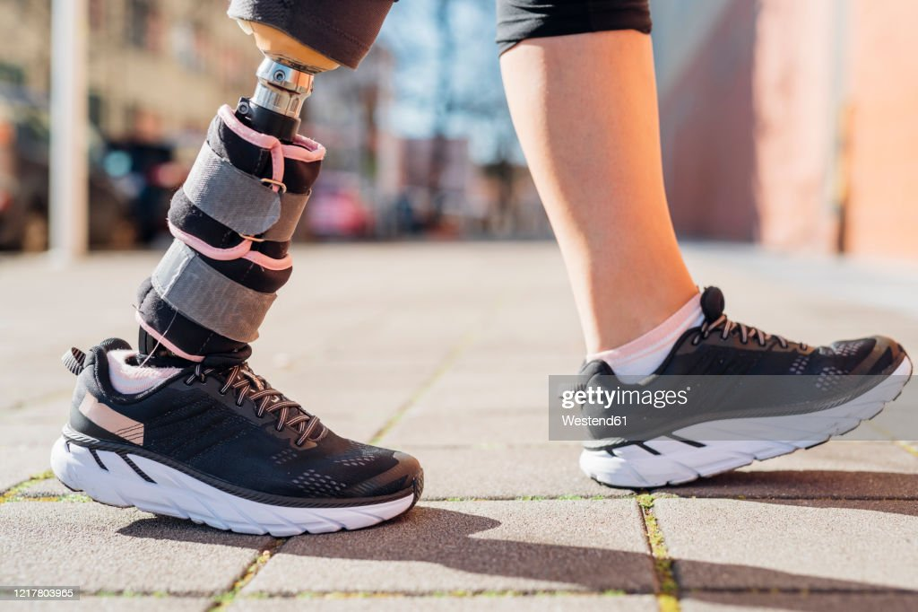 Close-up of legs of sporty woman with leg prosthesis in the city : Stock Photo