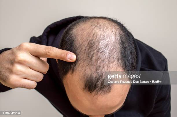 close-up of man pointing at receding hairline against beige background - receding hairline stock pictures, royalty-free photos & images