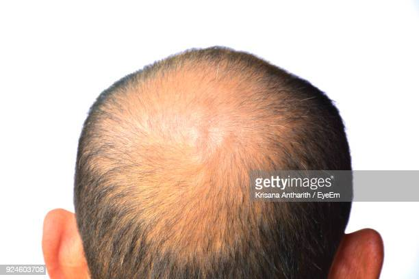 close-up of man with balding hair against white background - balding stock pictures, royalty-free photos & images