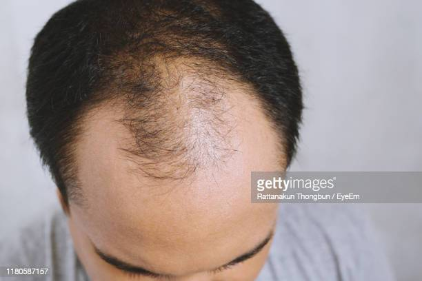 close-up of man with receding hairline against gray background - hair loss stock pictures, royalty-free photos & images