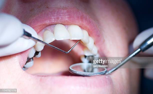 Close-up of mouth getting dental exam