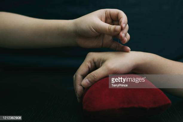 close-up of patient getting acupuncture therapy by chinese doctor - acupuncture needle stock pictures, royalty-free photos & images