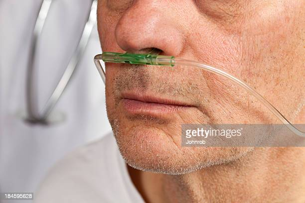 close-up of patient's face with breathing tube in nose - respiratory disease stock pictures, royalty-free photos & images
