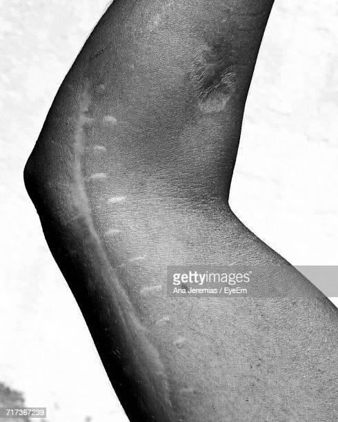 Close-Up Of Person Arm With Stitching Scars