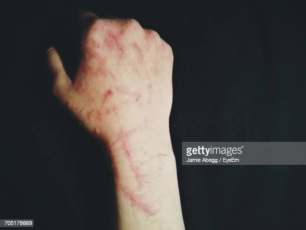 close-up of scratched hand on black background - self harm stock photos and pictures