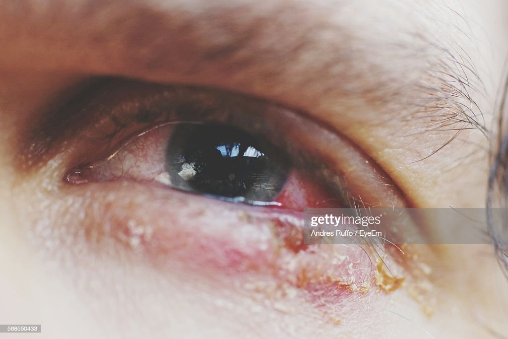 Close-Up Of Sore Eye : Stock Photo