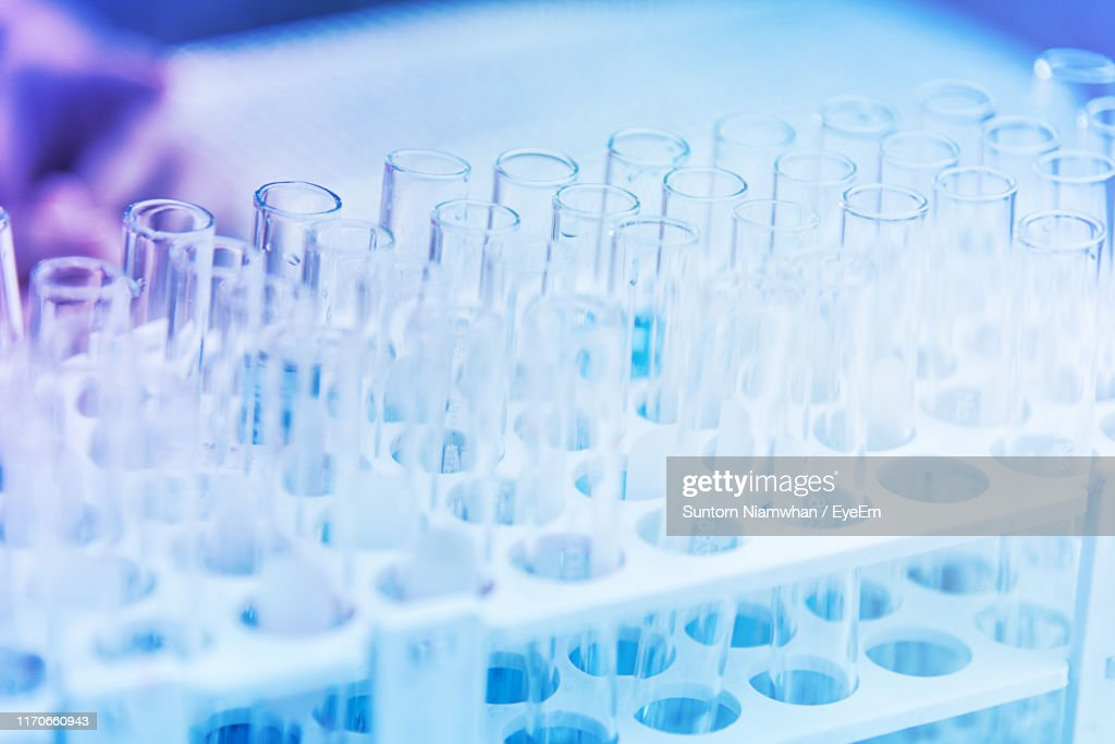 Close-Up Of Test Tubes In Rack At Medical Laboratory : Stock Photo