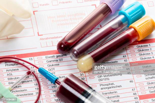 close-up of test tubes on paper - blood test stock pictures, royalty-free photos & images