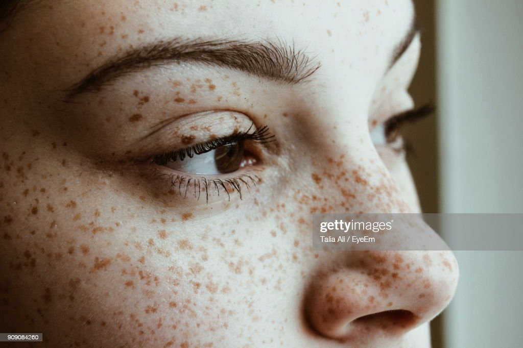 Close-Up Of Thoughtful Woman With Freckles On Face : Stock Photo