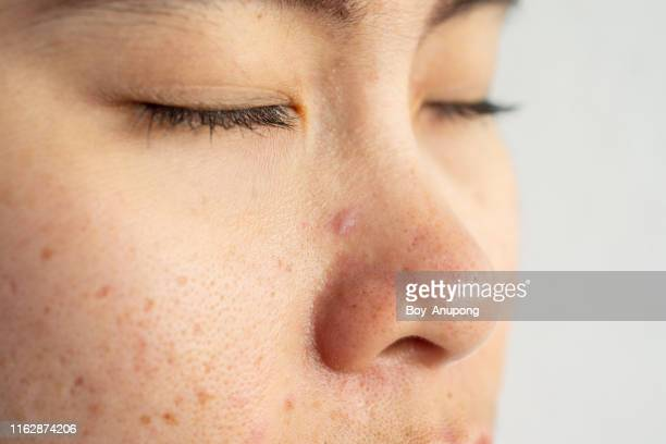 closeup of woman face with problems of acne inflammation (papule and pustule) on her face. - pores stock photos and pictures