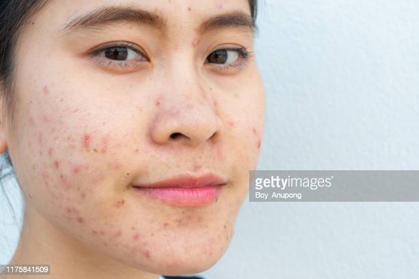close-up of woman face with problems of acne inflammation (papule and pustule) on her face and she looking to camera. - ugly lips stock photos and pictures