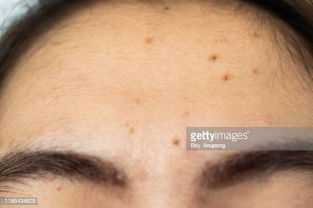 close-up of woman forehead with the problem of acne and scar from acne inflammation (papule and pustule) on her forehead. - abscess stock photos and pictures