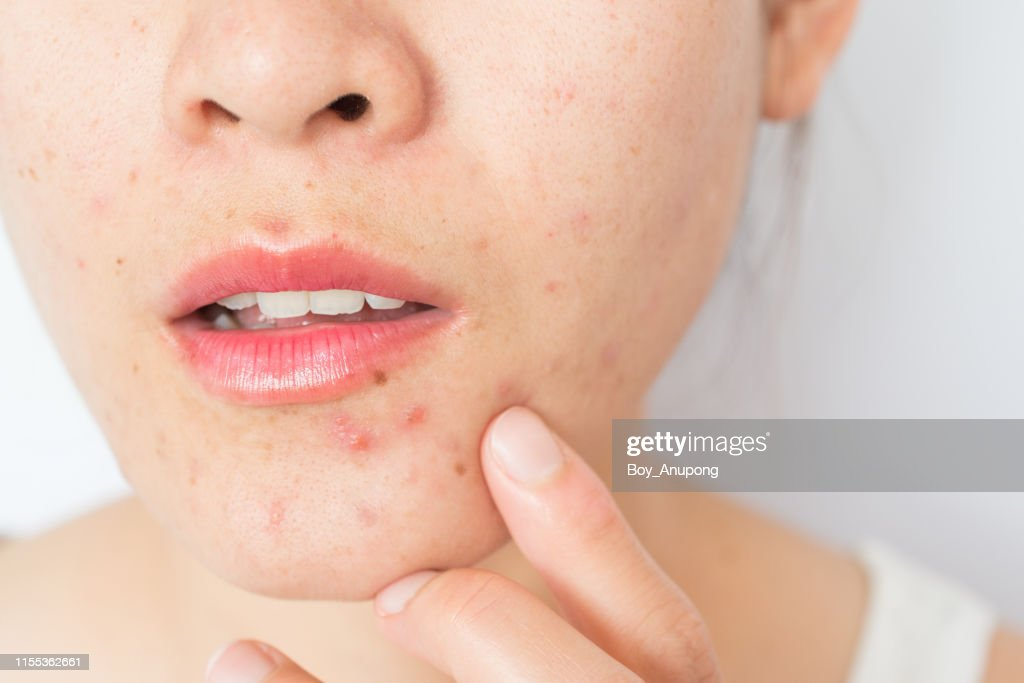 Closeup of woman half face with problems of acne inflammation (Papule and Pustule) on her face. : Stock Photo