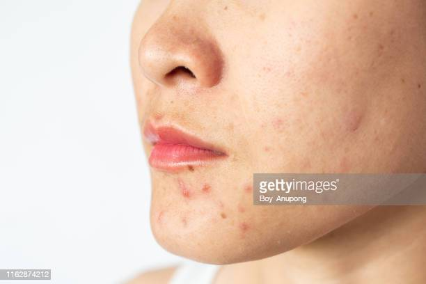 closeup of woman half face with problems of acne inflammation (papule and pustule) on her face. - acne stock pictures, royalty-free photos & images