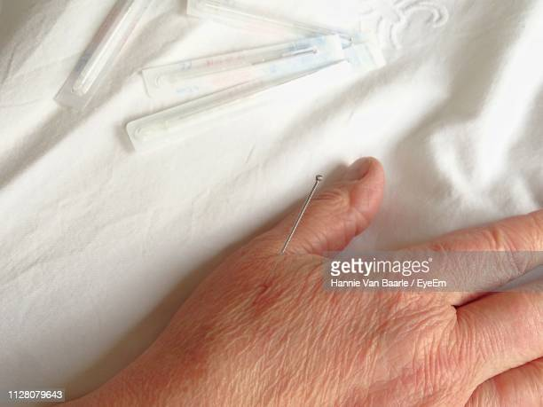 Close-Up Of Woman Hand With Acupuncture Needle On Bed