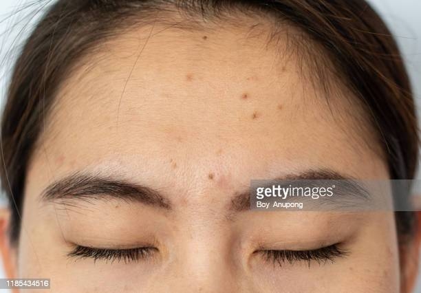 close-up of woman head, closed her eyes with the problem of acne and scar from acne inflammation (papule and pustule) on her forehead. - fille moche photos et images de collection