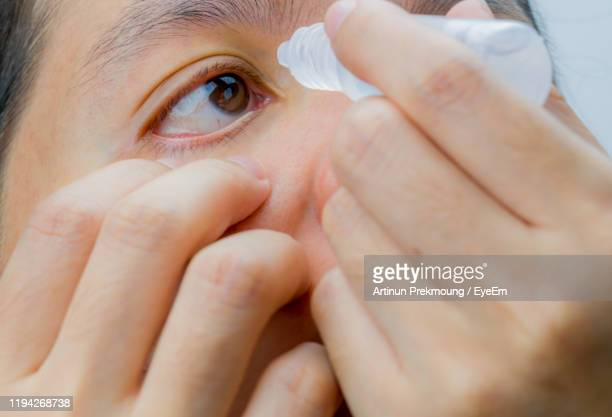 close-up of woman putting drop in eye - conjunctivitis stock pictures, royalty-free photos & images