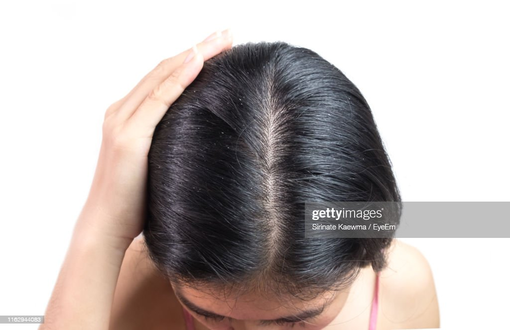 Close-Up Of Woman Showing Scalp Against White Background : Foto de stock