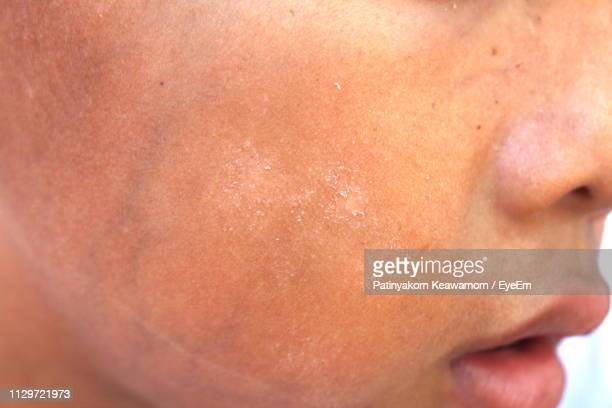 close-up of woman with dry cheek - dry mouth stock photos and pictures