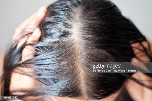 close-up of woman with hair loss - hair loss stock pictures, royalty-free photos & images