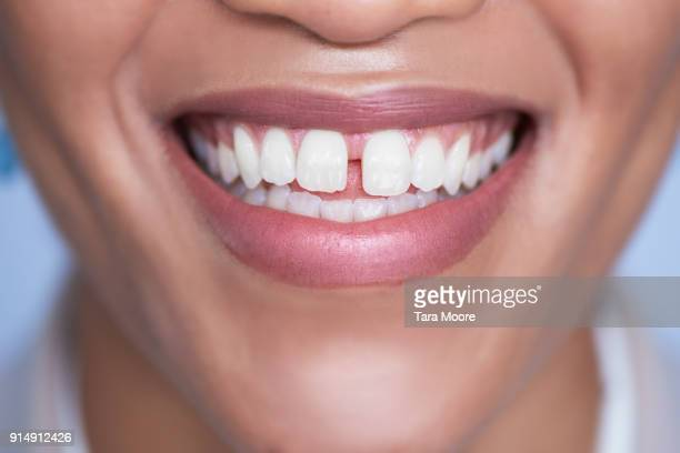 closeup of woman's mouth smiling - imperfection stock pictures, royalty-free photos & images