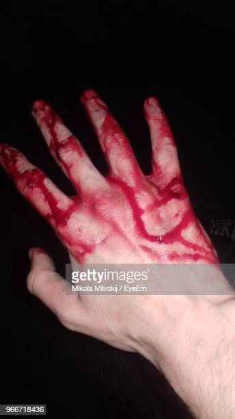 close-up of wounded human hand covered with blood against black background - sangre humana fotografías e imágenes de stock