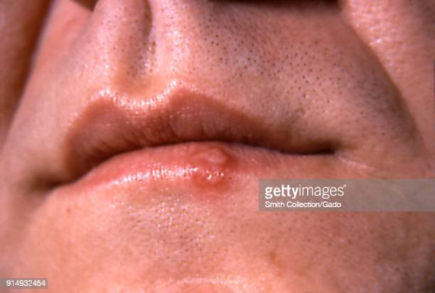 Closeup photograph of a cold sore caused by the Herpes simplex virus on the lower lip 1964