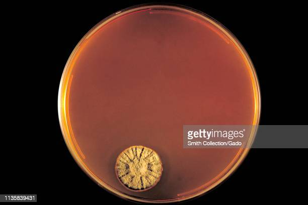 Closeup photograph of the Dermatophyte Test Medium agar plate culture growing the fungus Trichophyton concentricum 1970 Image courtesy Centers for...